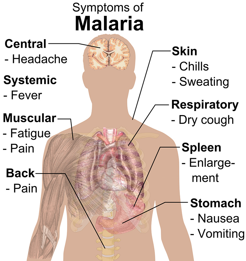 Symptoms of Malaria (By Mikael Häggström (All used images are in public domain.) via Wikimedia Commons)