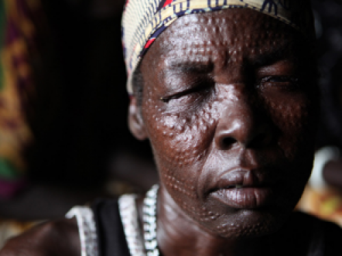Photo for: Fighting NTDs: Five years later, five years closer
